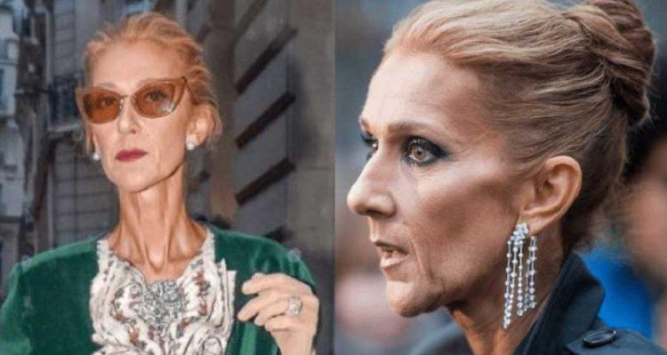 Dangereusement amaigrie..Céline  Dion avoue tout sur sa maladie!